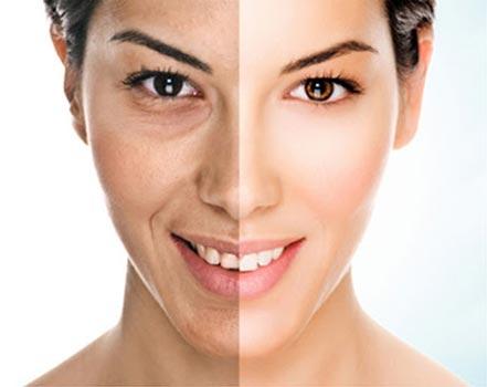 Migliore crema occhiaie: perché compaiono le occhiaie
