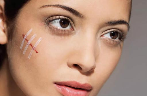 Crema per cicatrici: tipi di cicatrici
