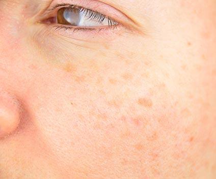 Macchie solari sul viso: lentigo