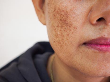 Macchie solari sul viso: melasma