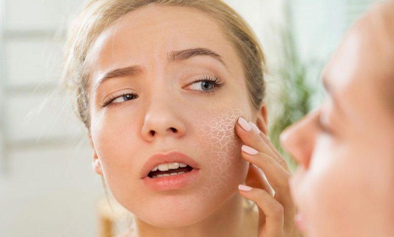 Photo of Pelle secca viso: quali sono cause e rimedi?