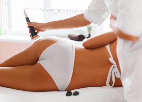 Rimedi per la cellulite: trattamenti estetici
