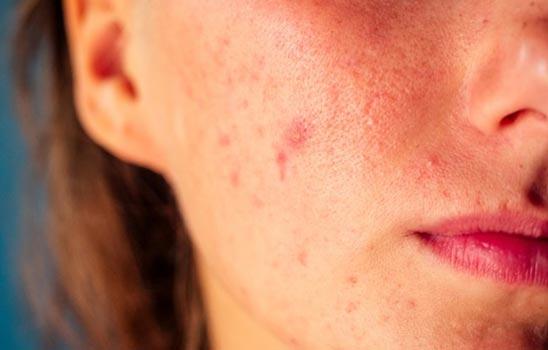 Tipi di pelle: acneica