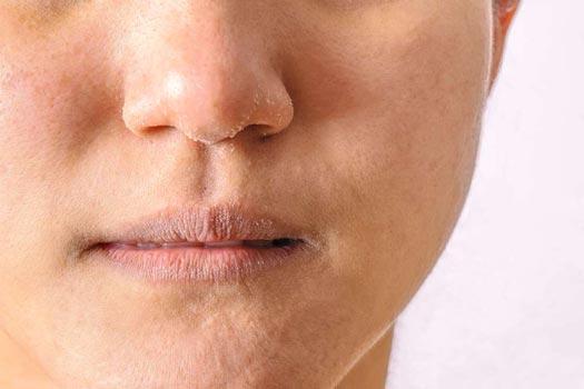 Tipi di pelle: pelle disidratata