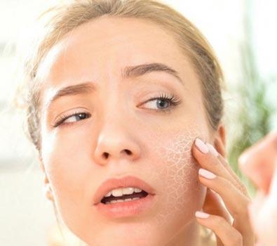 Tipi di pelle: pelle secca