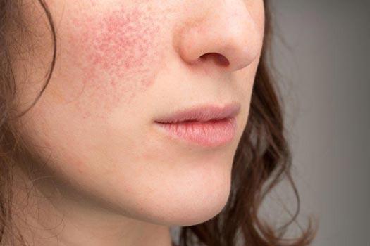 Tipi di pelle: rosacea-e-couperose